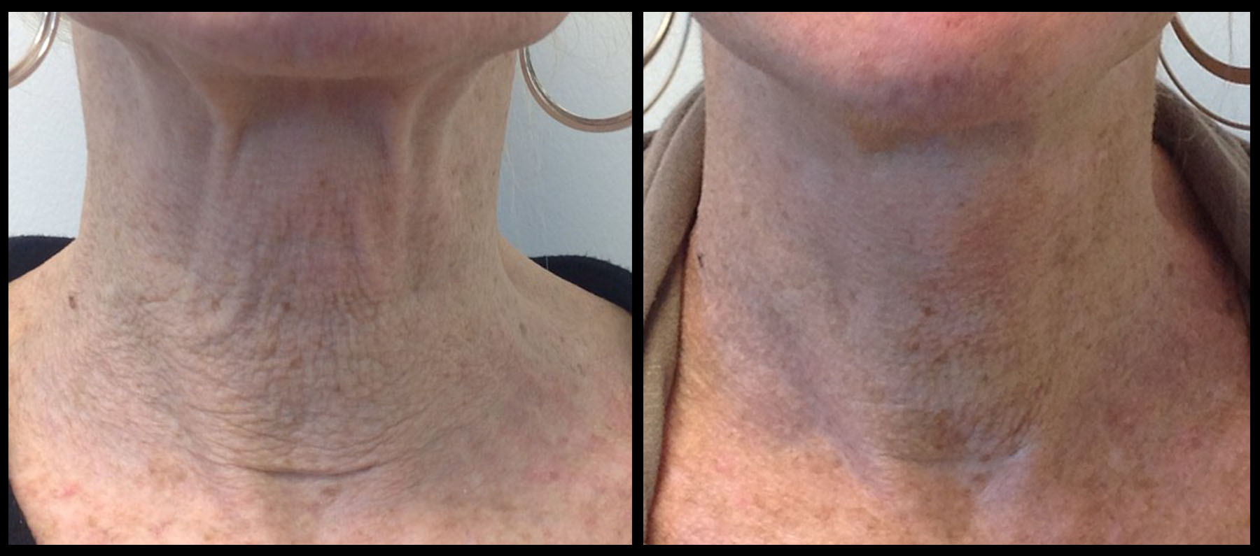 Before & after 1 treatment