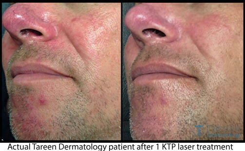 KTP Laser for Facial Redness, Rosacea and Broken Capillaries