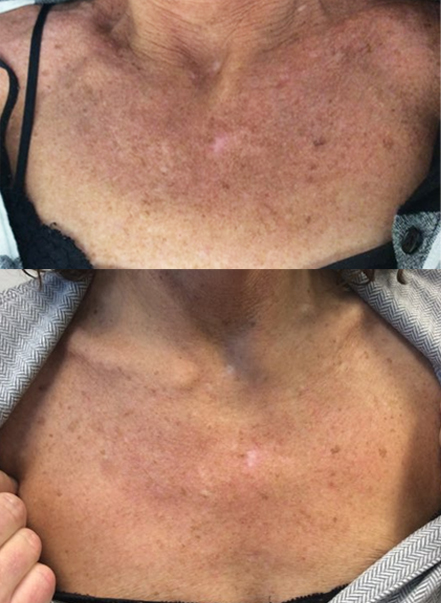 Before and After Two Glycolic Peels