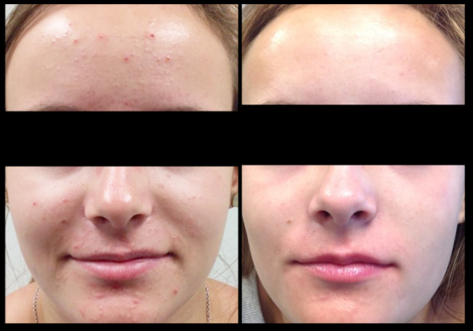 Before and After 3 Salicylic Peels