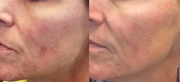 After One Vibrance Peel